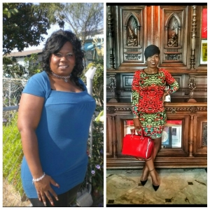 weightloss, bariatric surgery, self-love